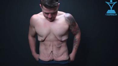 Photo of خبر های بد و خوب برای افرادی که دچار پوست شل هستند