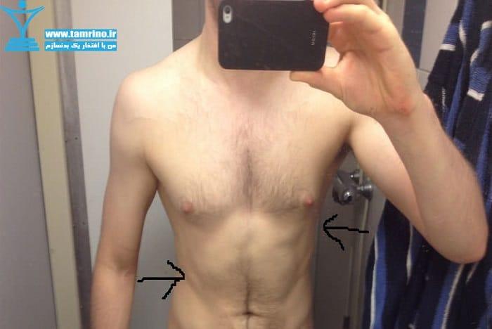 عدم تقارن عضلانی شکم