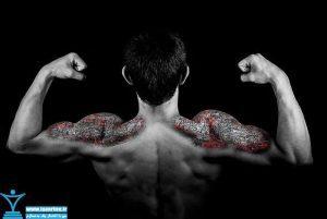 درمان درد عضلانی