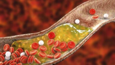 Photo of چطور سطح کلسترول خون را پایین بیاورم